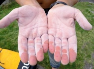 You can see the pink/purple patches where the rock has worn through Andy's finger pads.