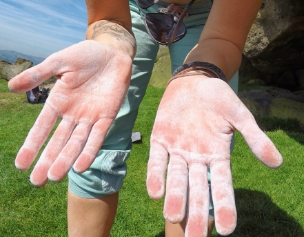 Scraped hands after climbing on a warmer day in the Peak District